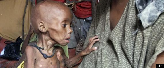 r-SOMALIA-FAMINE-large570